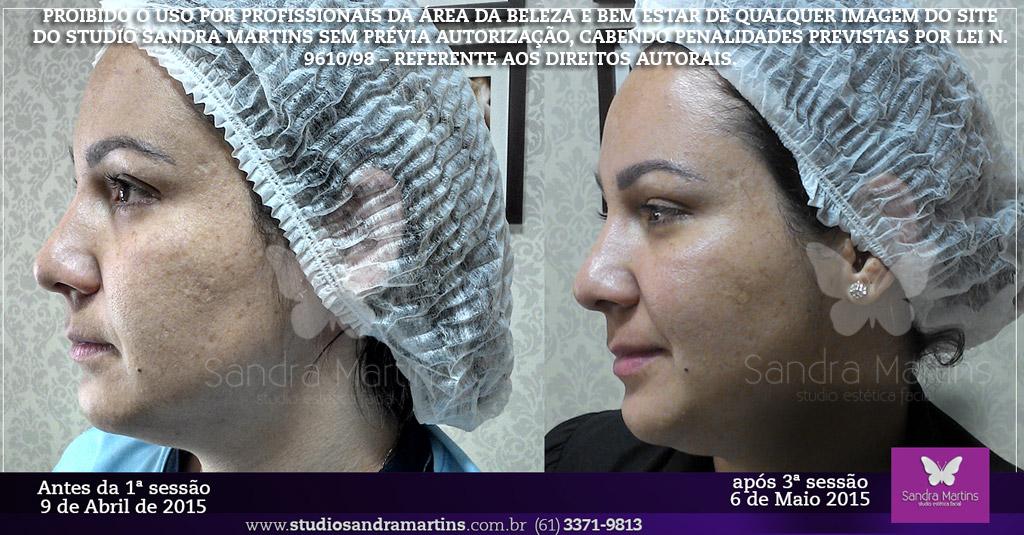 Após o tratamento de clareamento de manchas em Brasilia executado em cabine o Studio Sandra Martins indica o uso em sua casa do Home Care Melan-off Clareador ADCOS de 30 gramas. Como principal potencializador do tratamento para clarear a pele e reduzir a intensidade das manchas. Não esquecendo também do uso de um bom protetor solar fator FPS 55! O Melan-off é um complexo sinérgino de ativos atua no clareamento da pele e reduz a intensidade das manchas, deixando a pele iluminada e renovada, usado para todos os tipos de pele. Possui 5% de vitamina C pura e Hexylresorcinol.