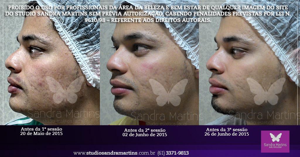 referencia em Brasília tratamento microagulhamento contra cicatrizes marcas manchas furos de acne rosto studio sandra martins