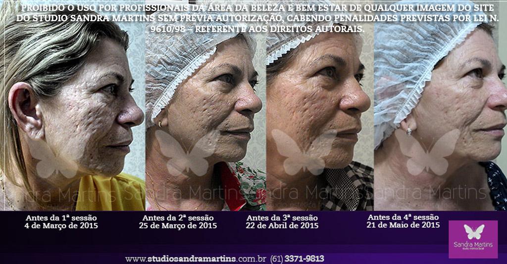 Microagulhamento, um procedimento estético que oferece a oportunidade de melhorar a aparência envelhecida por meio da redução de rugas, combate à flacidez facial, melhora da textura e aumento da luminosidade. Importante lembrar que o preço do microagulhamento