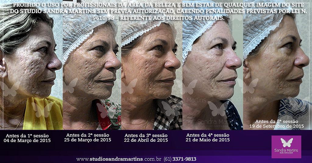 Microagulhamento contra cicatriz marca e mancha de acne brasilia sandra martins