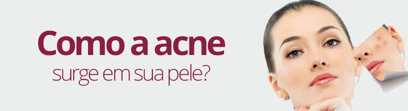 Quais-os-principais-fatores-para-o-surgimento-da-acne