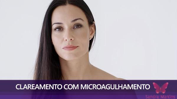 tratamento de microagulhamento com dermaroller em brasilia clareamento facial melasma