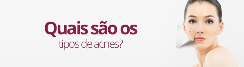 quais-sao-os-tipos-de-acnes