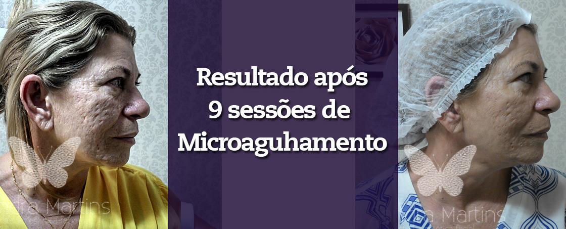 antes-e-depois-microagulhamento-cicatriz-de-acne-brasilia
