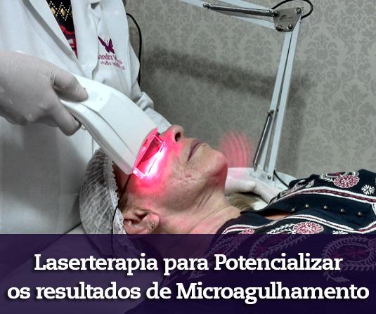 Tratamento facial com laserterapia e ledterapia para auxiliar nos tratamentos de microagulhamento, clareamento facial e rejuvenescimento facial em Brasília