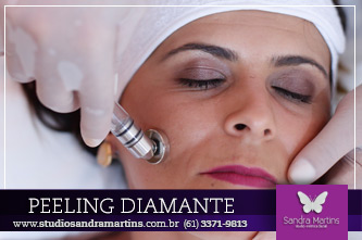 peeling-diamante