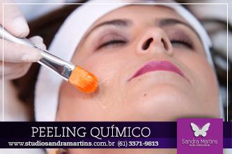 peeling-quimico-2