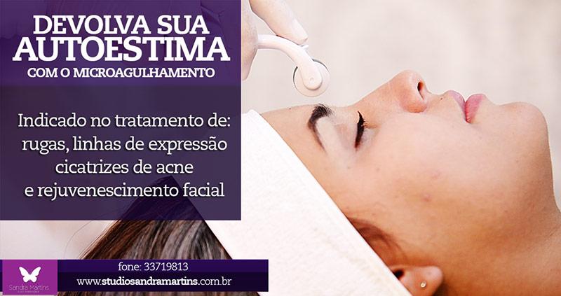 Em menos de 6 meses mais de 20 tratamentos de microagulhamento realizados no Studio Sandra Martins de Estética Facial. O público de Brasília e DF procurando esse inovação para a renovação da pele do rosto.