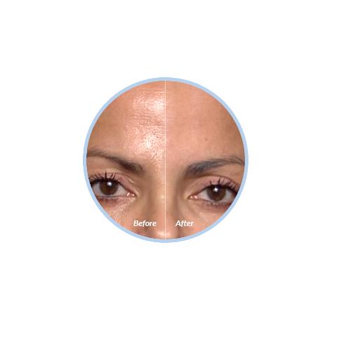 blur-cosmobeauty-pele-das-estrelas-efeito-photoshop-na-vida-real-2f