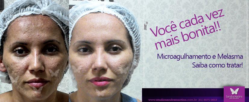 Confira como o Microagulhamento pode auxiliar no tratamento de Melasma! Saiba como tratar em Brasília no Studio Sandra Martins.