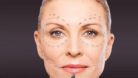Os tratamentos estéticos faciais realizados no Studio Sandra Martins, com a fotoestética são aplicados na direção das linhas de Langer também chamadas de linhas de clivagem ou linhas de tensão da pele.