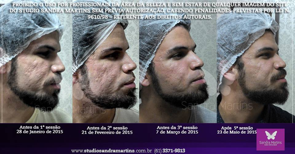Quanto tempo dura os resultados do microagulhamento contra cicatrizes de acne em brasilia