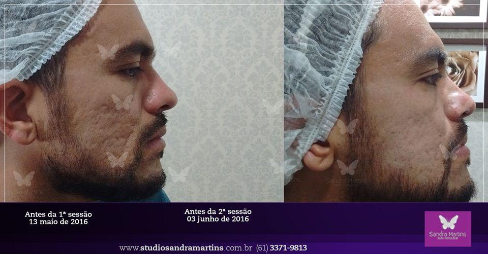 Você ainda não sabe o que é o microagulhamento? Conheça o tratamento e o benefício da laserterapia contra as cicatrizes de acne em Brasília.