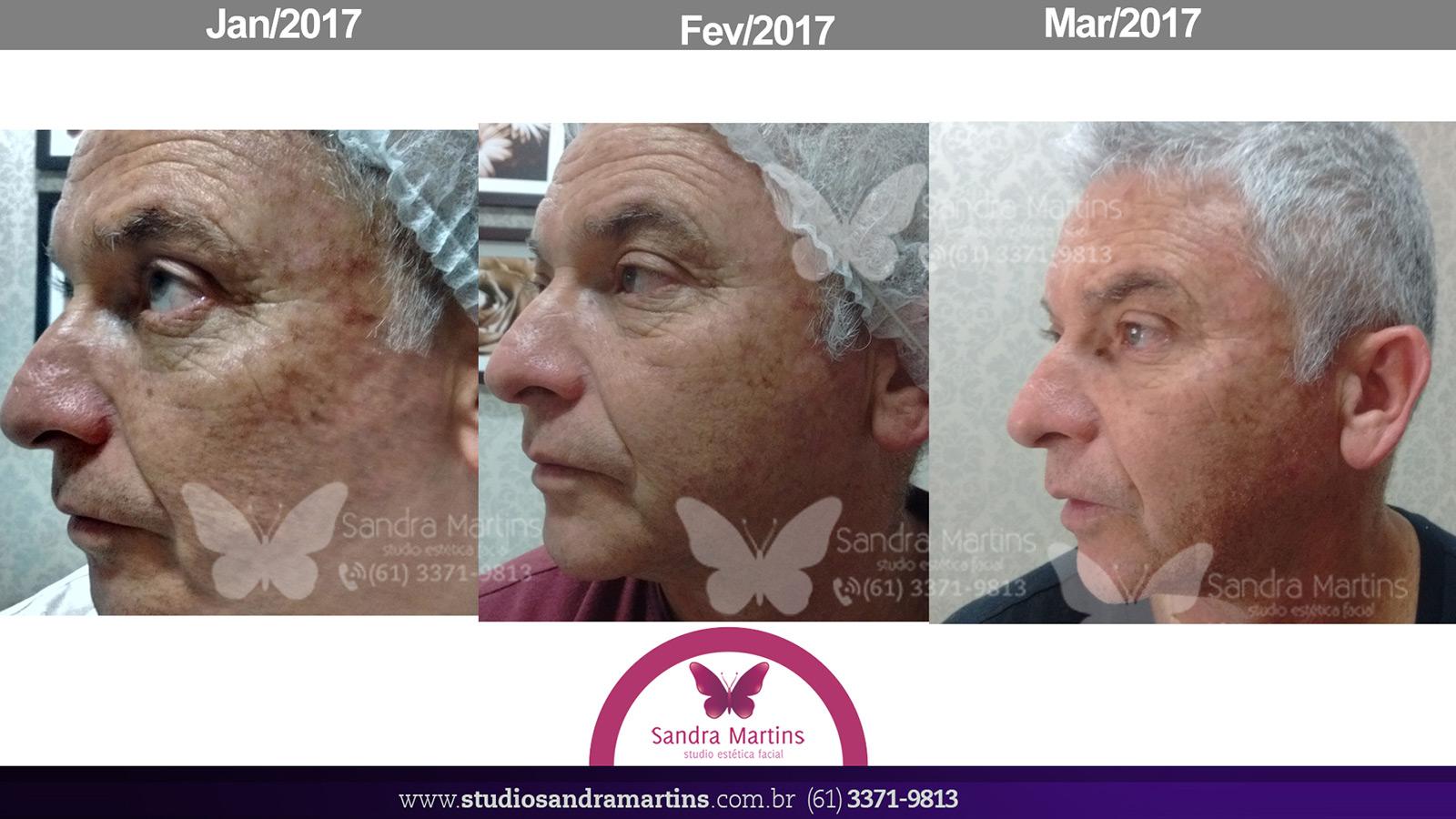 Antes e depois do tratamento de Peeling Criogênico