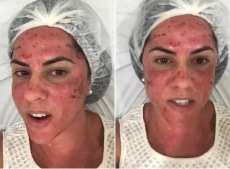Não é de hoje que personalidades e atrizes aderiram ao tratamento de microagulhamento para melhorar a textura da pele do rosto em Brasília