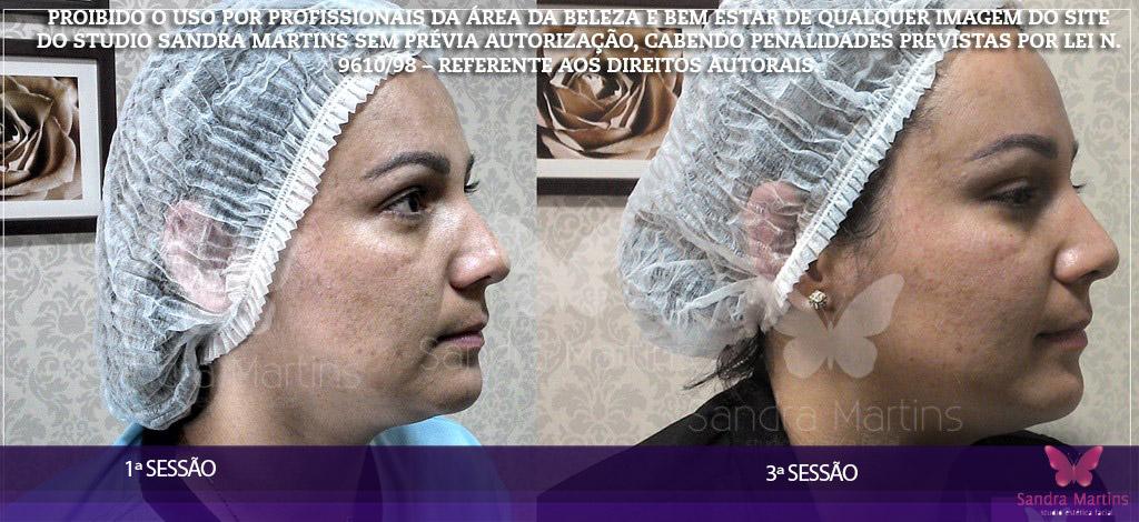 antes e depois clareamento, limpeza de pele, microagulhamento, dermaroller e rejuvenescimento Brasilia Sandra Martins
