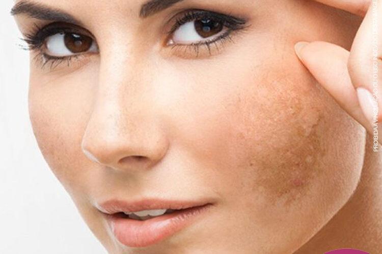 O Melasma se caracteriza por manchas escuras na pele, geralmente na face, mas que também podem aparecer em outras partes do corpo, como colo, braços e pescoço. Sua incidência é mais comum em mulheres entre os 20 e 50 anos, porém também pode afetar os homens
