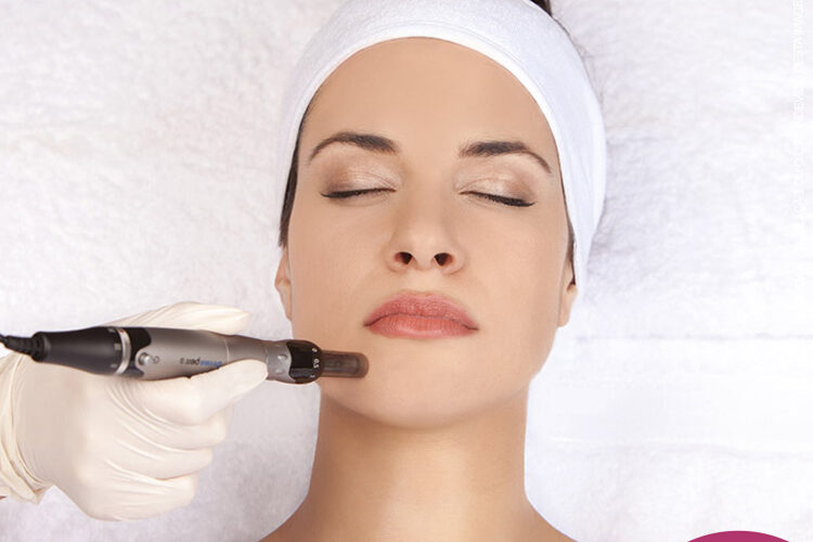 Conheça esse maravilhoso tratamento de Rejuvenescimento Facial com a utilização do microagulhamento com o Dermapen em Brasília.