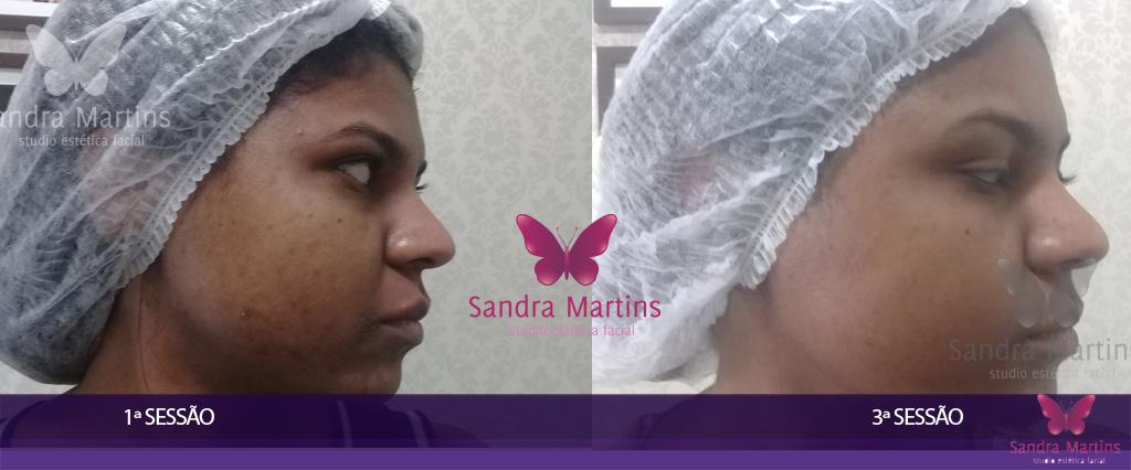 O mais moderno e eficiente tratamento de clareamento e rejuvenescimento facial: Vulcan Ice Max o Peeling das Estrelas com Ácidos Vulcânicos em Taguatinga.