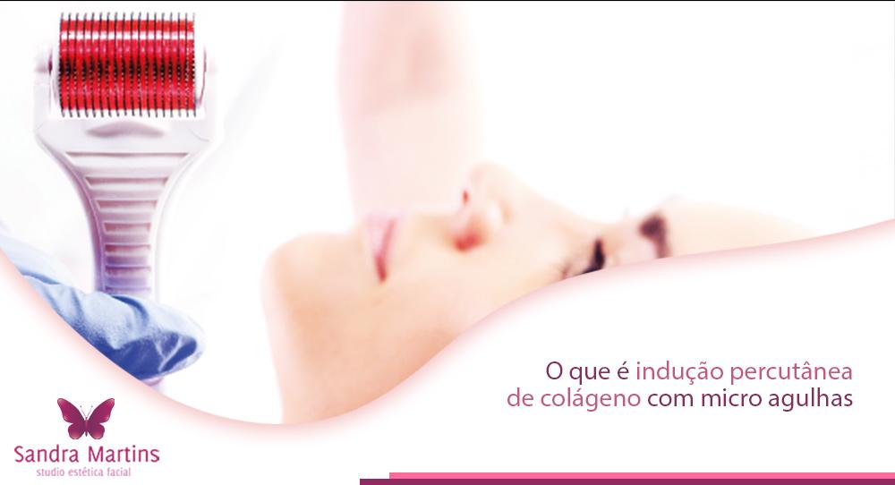 Onde fazer em Brasília e o que é a indução percutânea de colágeno (IPCA) ou comumente chamada do microagulhamento ou microneedling. Conheça Sandra Martins