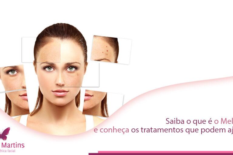 Você mora em Brasília ou regiões? Então saiba o que é melasma e os principais tratamentos realizados no Studio Sandra Martins que fica em Taguatinga.