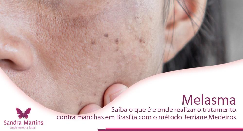 Melasma, a mancha que assombra as mulheres, saiba o que é e onde realizar o tratamento contra manchas em Brasília com o método Jerriane Medeiros