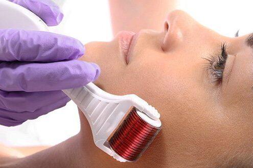 Cinco motivos para renovar sua pele com microagulhamento em Brasília.Tratamento induz a produção de colágeno, além de aumentar a renovação celular da epiderme e estimular a produção de elastina.