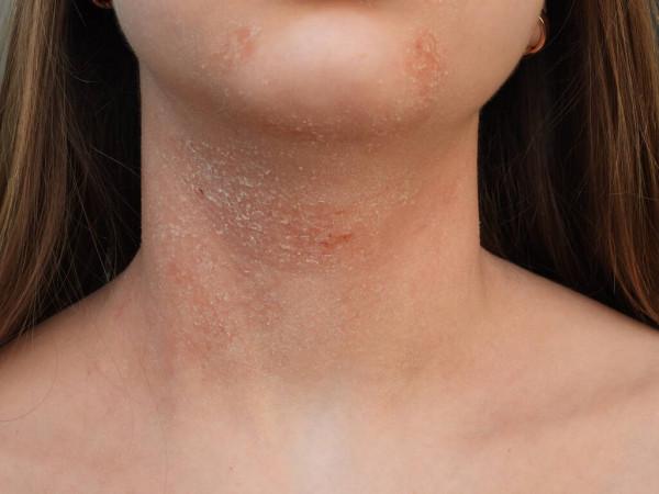 Xerose é um problema comum a milhões de pessoas, afetando-as de forma crônica ou aguda. Assim como fatores dão suporte à hidratação cutânea,a falta de água dentro da pele pode manifestar-se clinicamentede diferentes maneiras.