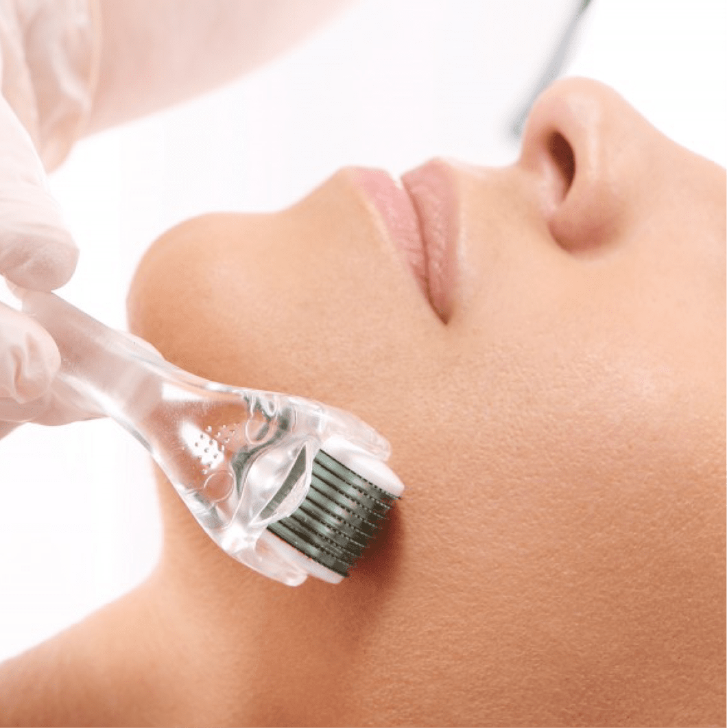 Durante a pandemia em Brasília oMicroagulhamento é um dos tratamentos mais procurados! Saiba como funciona essa técnica para a pele