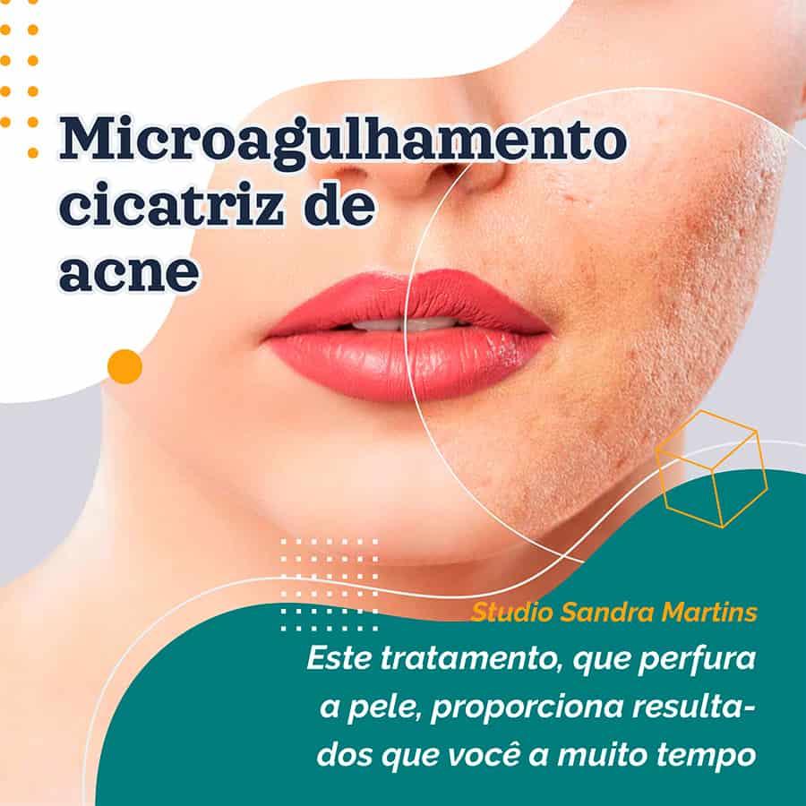 Chama-se microneedling — ou microagulhamento, em português — e promete melhorar o aspeto das rugas, reduzir manchas, marcas de acne ou outras cicatrizes, e até pode ajudar a estimular a Harmonização da papada, pescoço e colo