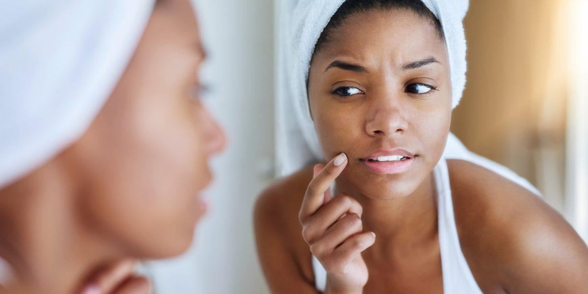 Acne como a dieta e a genética interferem no surgimento de espinhas! Dicas valiosas para você cuidar da sua pele em qualquer época do ano!