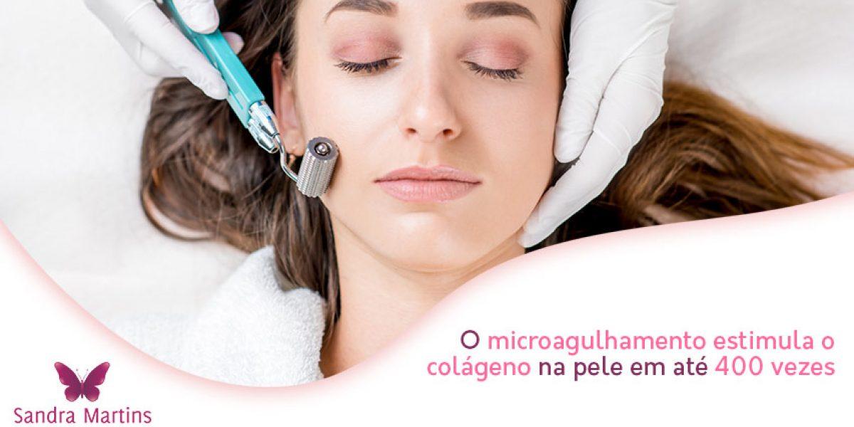 Você sabia que um dos principais trunfos do microagulhamento é o de estimular o colágeno da pele em até 400 vezes?