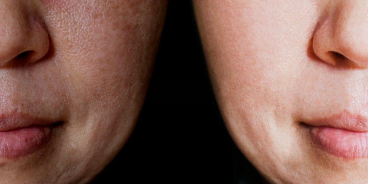 Quais os Melhores procedimentos para o Melasma que o Studio Sandra Martins indica