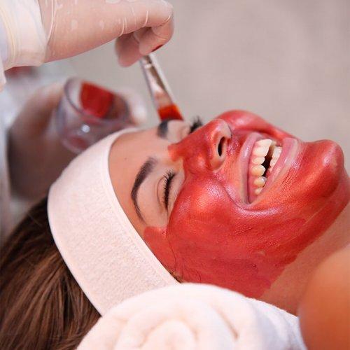 clareamento-facial-mancha-melasma-sandra-martins-melhor-brasilia-1