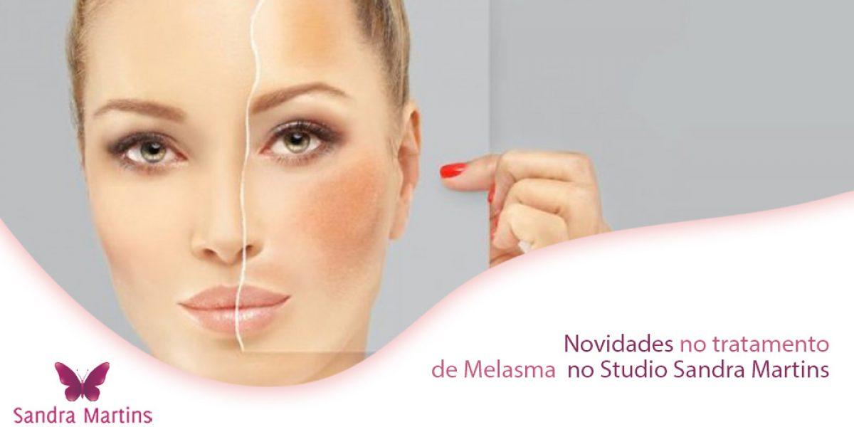 novidades-no-tratamento-melasma-brasilias-studio-sandra-martins