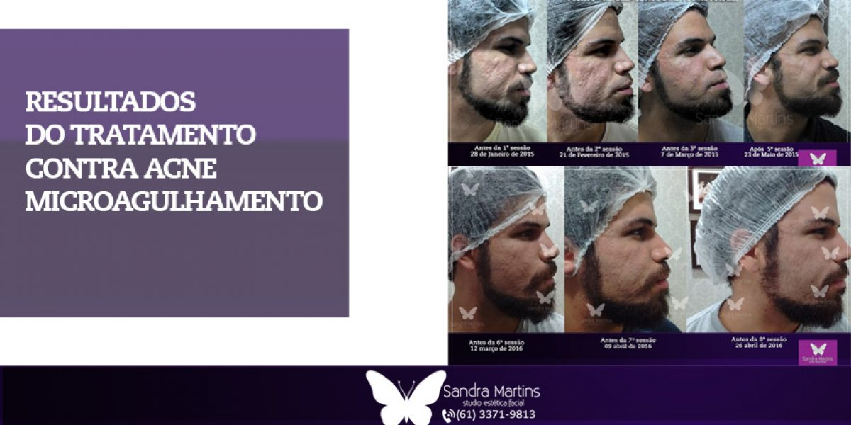 Confira 5 benefícios do microagulhamento feito em Brasília para a sua pele: marcas de acne, poros abertos, harmonização facial sem corte e muito mais!
