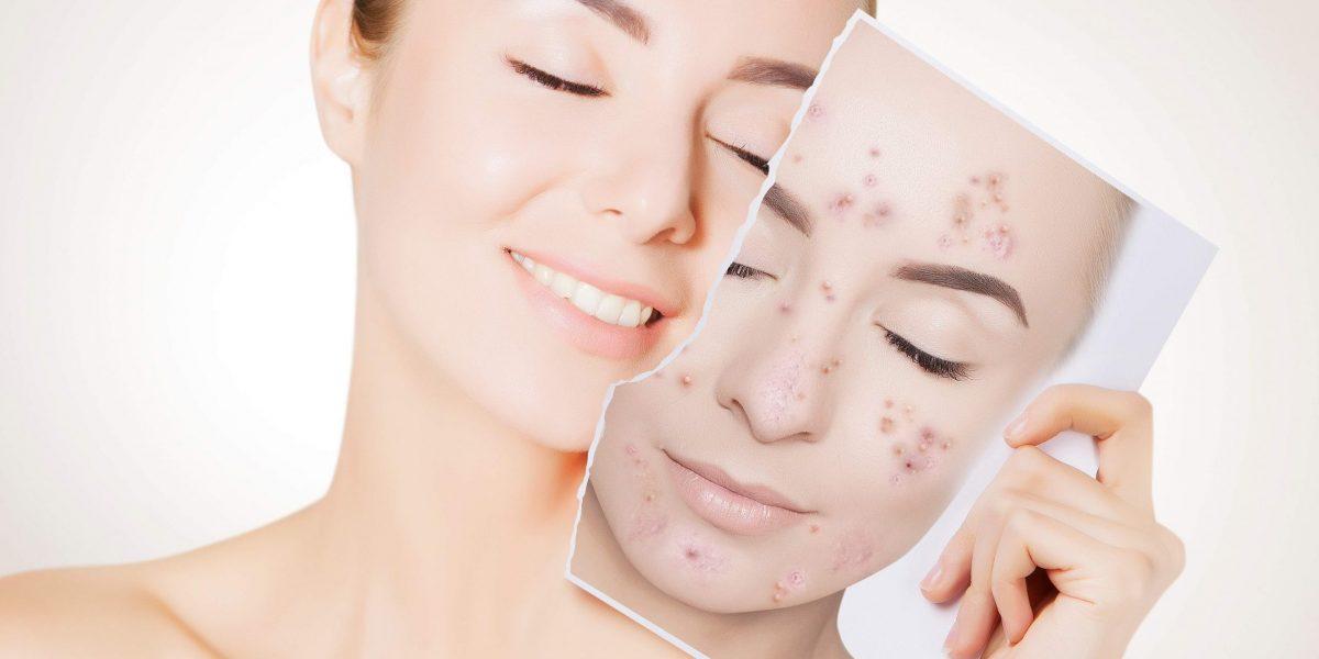 Tratamento para acne resseca a pele? Entenda se o tratamento para a acne resseca a pele e que fazer se isso acontecer